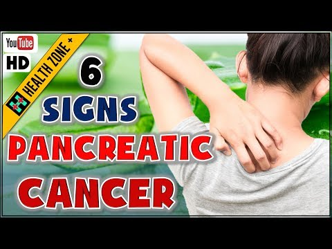 6 Early Signs of Pancreatic Cancer | Symptom of Pancreatic Cancer
