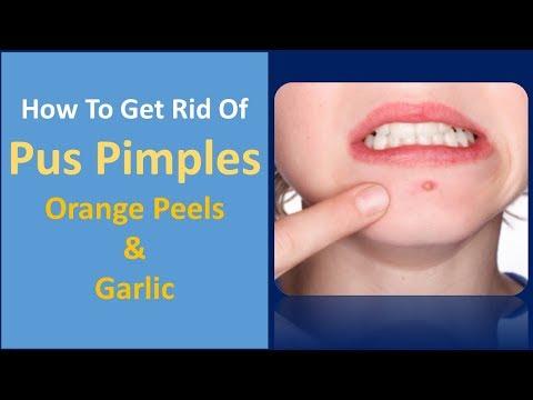how to get rid of pus pimples | Orange Peels & Garlic