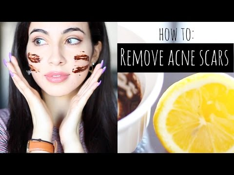 How to: Remove acne scars naturally DIY mask & tips for getting rid of acne