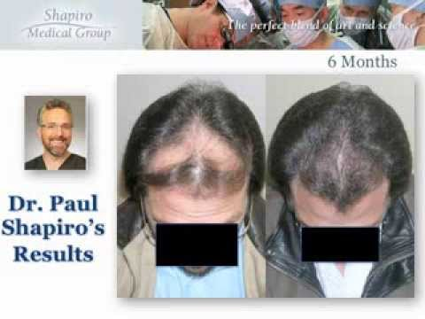 Hair Transplant Result with Shapiro Medical Group, 6 Months