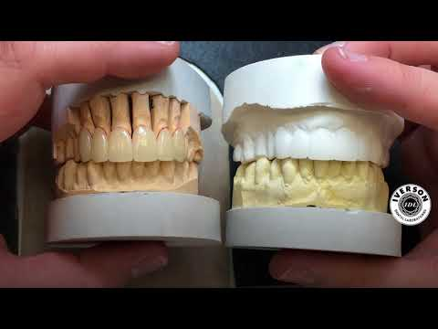 How to make small teeth show more when smiling - Dentist in Skelmersdale