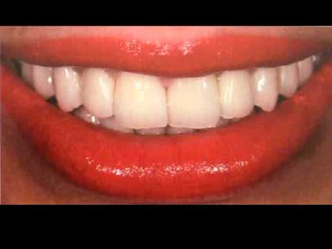 Tooth Color Selection for dentures