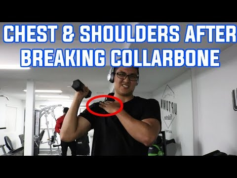 First Chest & Shoulder Workout Since Breaking My Collarbone