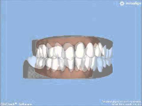 invisaligngently-moves-teeth