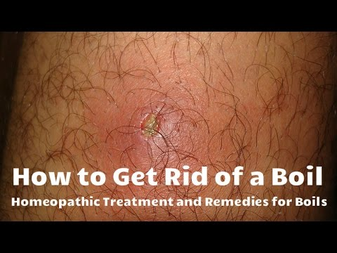 How to Get Rid of a Boil - Homeopathic Treatment and Remedies for Boils