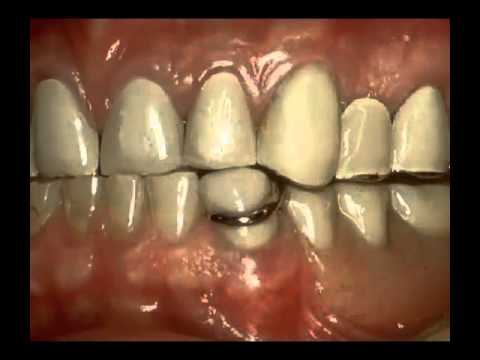 Precision Partial Denture - Miskin Ajax Dental