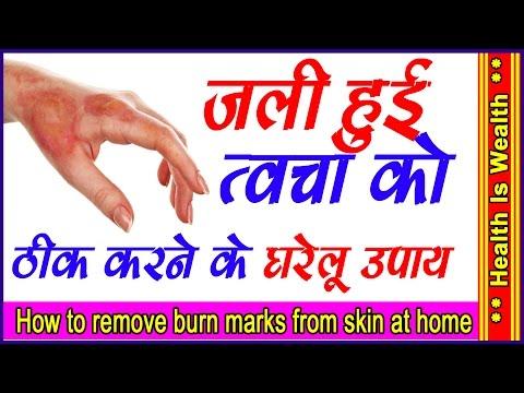 जली त्वचा को ठीक करने के घरेलु उपाय - Burn Skin Care Natural Ayurvedic home Remedies