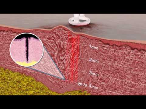 How Does Laser Scar Removal Work?