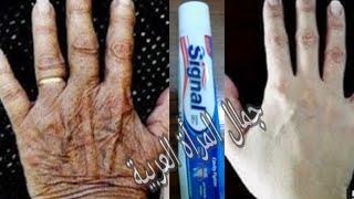يديك تبدوا مثل العجوز بملعقة| معجون اسنان تخلصي من اسمرار و تشققات الأيدي نهائيا ومن الاستعمال الأول