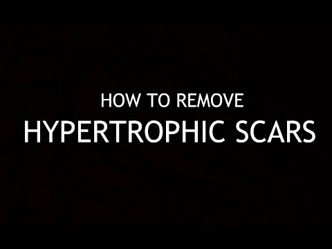 HOW TO REMOVE HYPERTROPHIC SCARS - Sharni Gray
