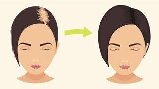 Haarausfall: 3 bewährte Hausmittel gegen Haarausfall (komplette Anleitung)