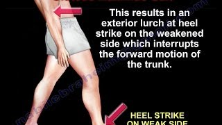 Gluteus Maximus Gait - Everything You Need To Know - Dr. Nabil Ebraheim