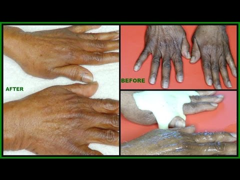HOW TO CARE FOR AGING HANDS, GET RID OF WRINKLES  SAGGING HANDS| 92 YEARS OLD HANDS |Khichi Beauty