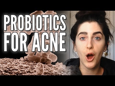 Applying Live BACTERIA to the Skin to Clear Acne! Will you do it?