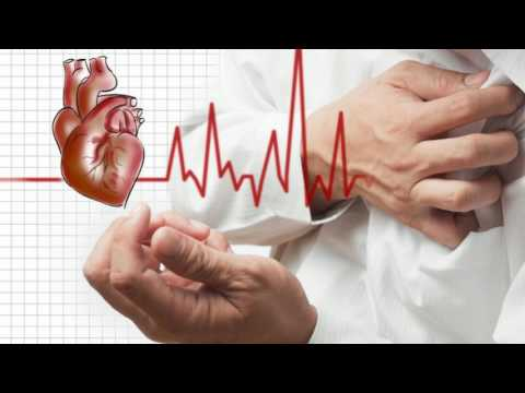 Difference Between Myocardial Infarction and Cardiac Arrest