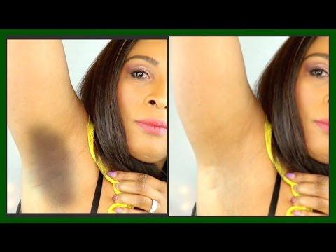 HOW TO LIGHTEN DARK UNDERARMS IN 2 EASY STEPS | MASK & SCRUB TO LIGHTEN DARK ARMPITS  |Khichi Beauty