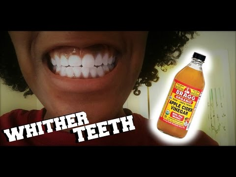 DIY Teeth Whitener | Apple Cider Vinegar
