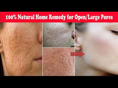 Get 100% Results-Tried & tested Home Remedy for Open/Large Pores|Get smooth & Fairer skin in 3 days