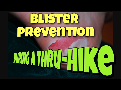Preventing blisters on your Thru-Hike