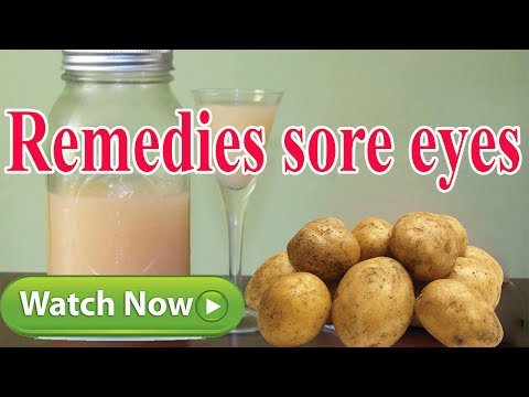 Home Remedies For Sore Eyes | 9 Easy Home Remedies for Sore Eyes