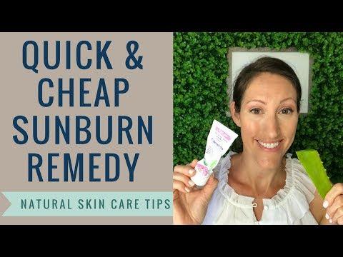 Natural DIY Sunburn, Minor Burn and Radiation Burn Home Remedies | Heal SUNBURNS Overnight & Fast