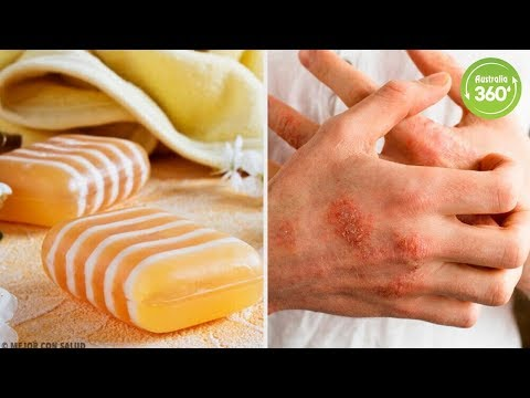 Homemade Glycerin, Propolis, and Clay Soap for Dermatitis - Australia 360