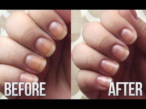 Removing Yellowness From Nails // Fix Stained Nails