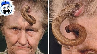 10 Bizarre Diseases That Science Still Can
