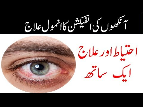 Eye Infection Home Remedies treatment in urdu|How to cure eye infection