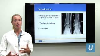 Ankle Arthritis | Ucla Orthopaedic Surgery #uclmdchat