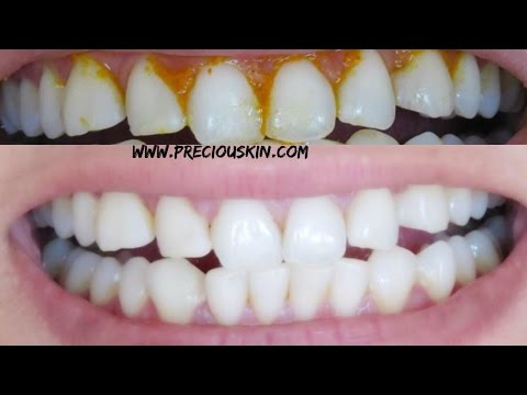 HOW TO GET SUPER WHITE TEETH INSTANTLY | Baking Soda, Lime Juice & Iodised Salt |