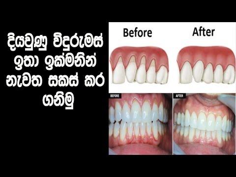 දියවුණු විදුරුමස් ඉතා ඉක්මනින් නැවත සකස් කර ගනිමු - Remedies to build your receding gums