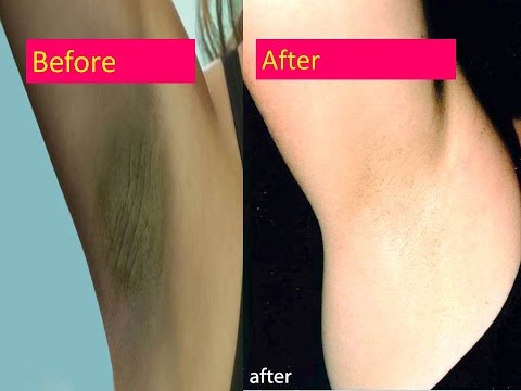 How To Lighten Dark Underarms Permanently  ,Get Rid Of dark Underarms