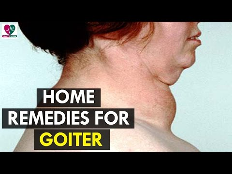 Home Remedies for Goiter - Health Sutra