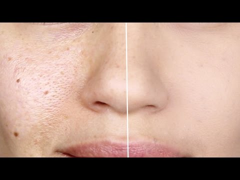 How to make Pores Disappear! | How to make Large Pores Vanish | Eman