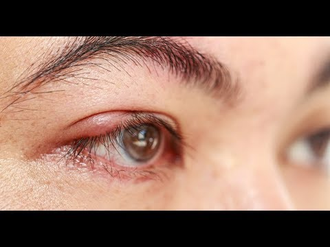 Quick Removal of a Stye From Your Eyelid