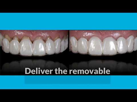 6 Steps to Creating a Removable Veneer Temporary