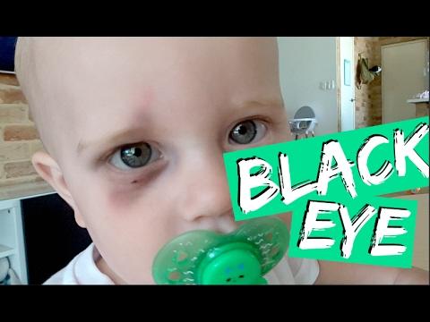 BABY GETS BLACK EYE & WALKING UNASSISTED