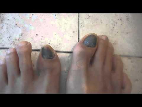 Progress of bruised toenails