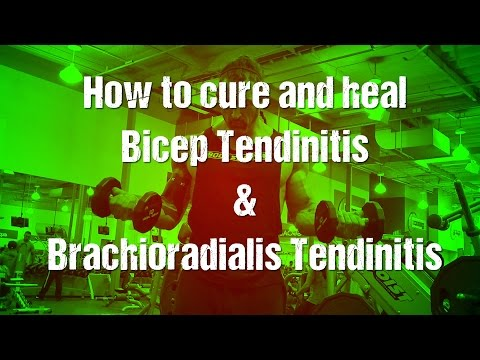 Bicep tendonitis & brachioradialis/forearm tendinitis