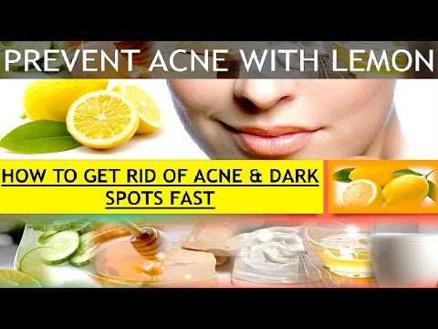 How To Prevent Acne & Dark Spots Fast With Lemon
