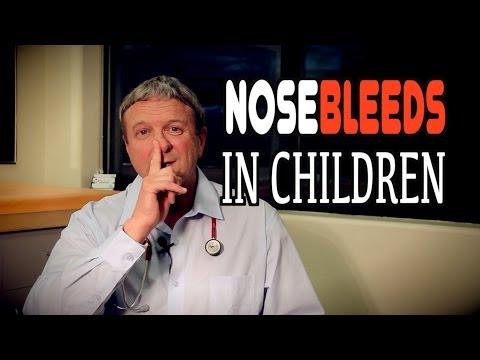 NOSEBLEEDS in Children | Dr. Paul