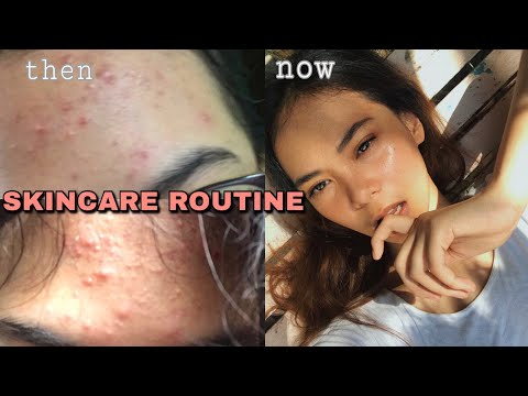 HOW I LOST MY PIMPLES IN 1 MONTH + my acne story   Amelia Salve