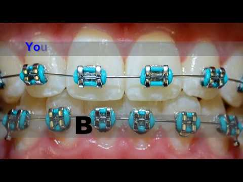 Clean teeth for braces, teenagers, plaque can be removed at home