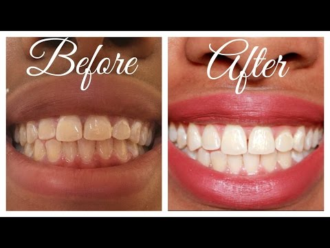 How I Whitened Extremely Stained Teeth at Home