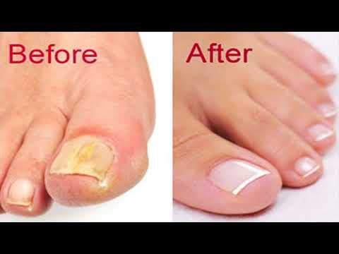 How To Prepare The Apple Cider Vinegar And Baking Soda Remedy At Home To Treat Fight Nail Fungus