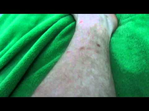 Fleas or bed bugs in Peru?