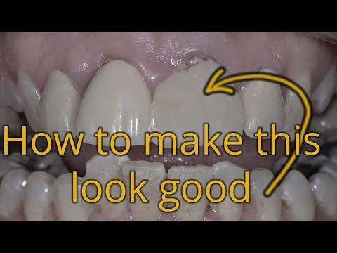 Making Big Front Teeth Look Small