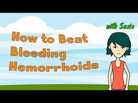 How to Beat Bleeding Hemorrhoids