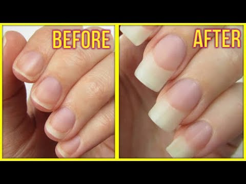 How To Grow Nails In One Day/ Nakhuno Ko Ek Din me Kese Badhayein